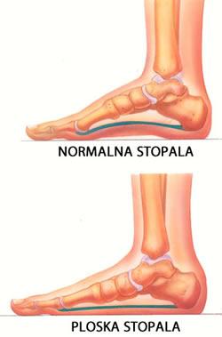 Normalna in ploska stopala