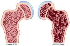 kosti-osteoporoza