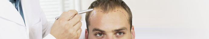 Ali lahko moj zdravnik ustavi izpadanje las?