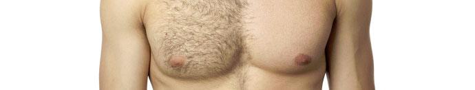 Te dlačice spravljajo ob živce?